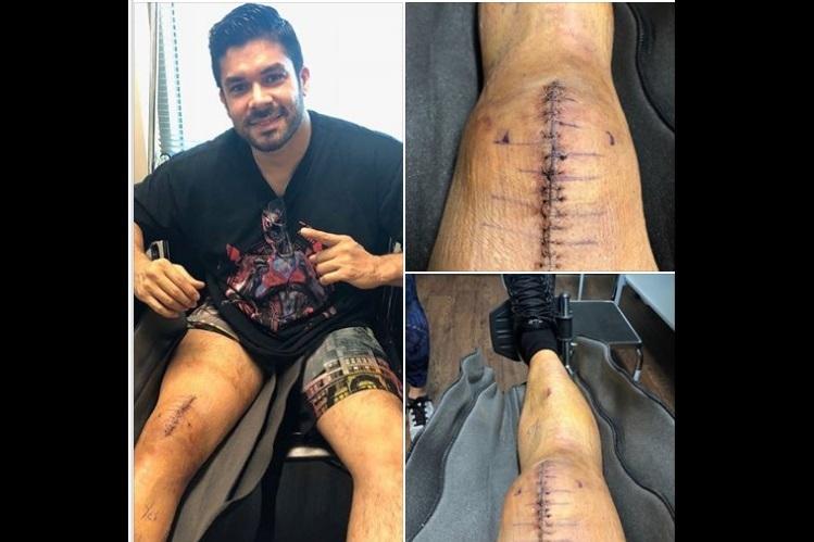Jerry Rivera muestra cicatrices, tras caída