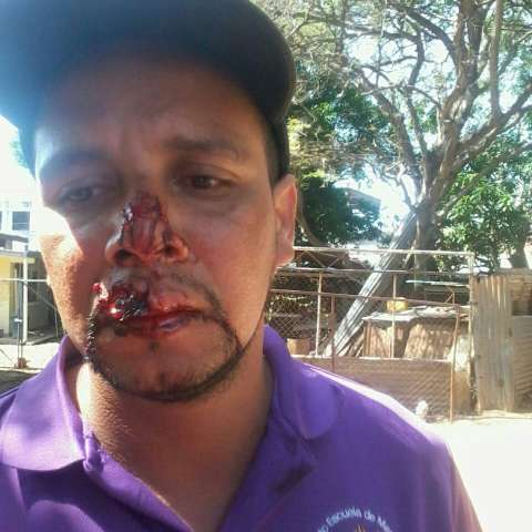 El herido fue sometido a una cirugía en el hospital Gustavo Nelson Collado de Chitré. (Foto: T.Domínguez)